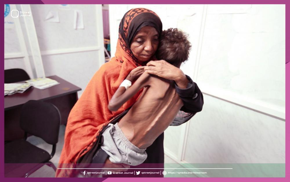 تحذيرات من كارثة مجاعة تهدد اليمن